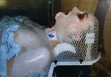 radiation treatment simulation